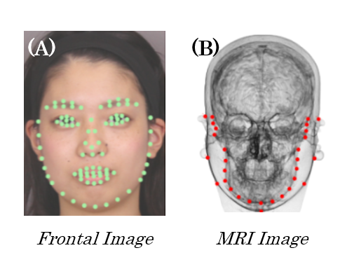 Facial Fattening and Slimming Simulation based on Skull Structure